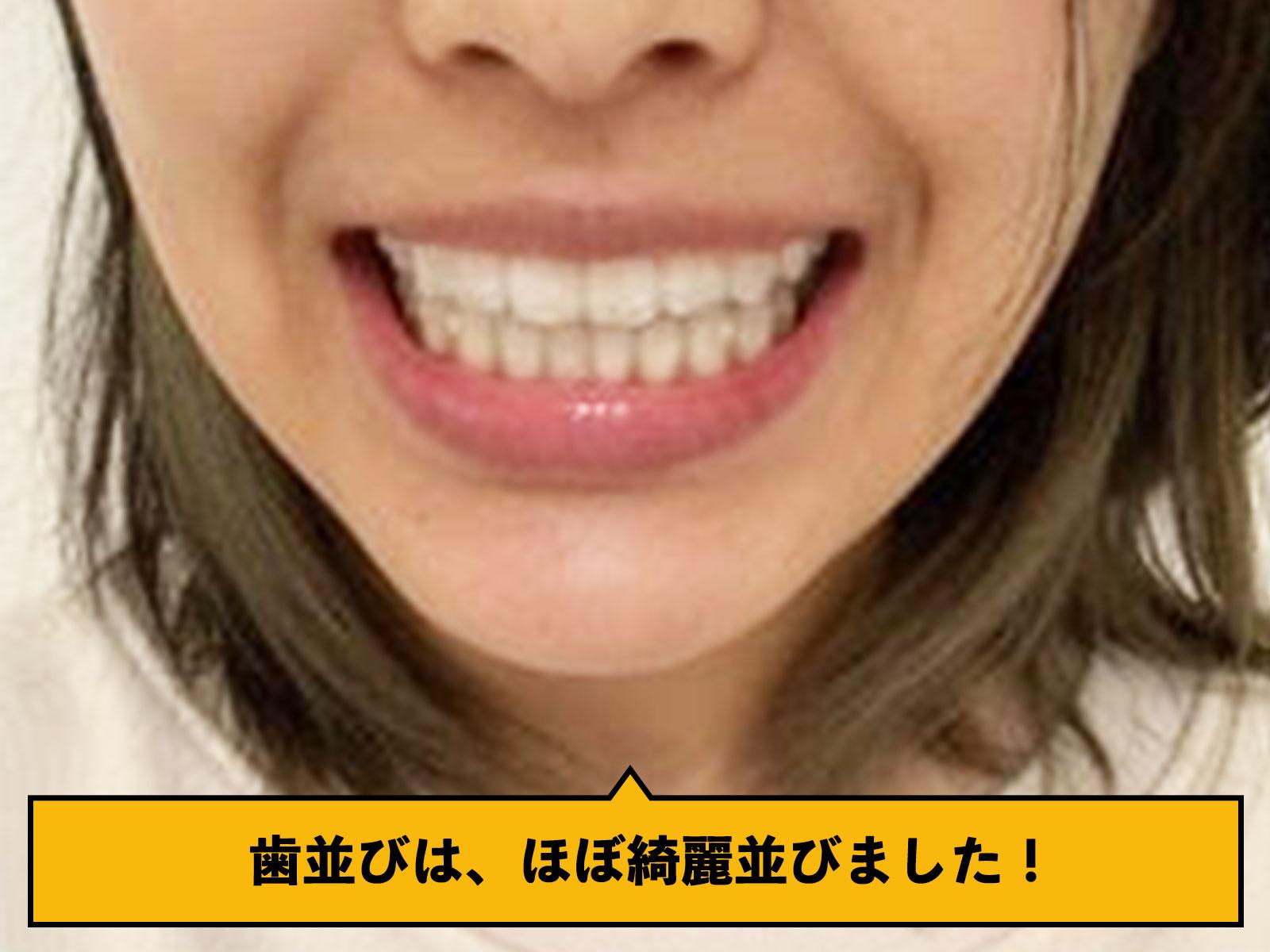 歯並び綺麗に